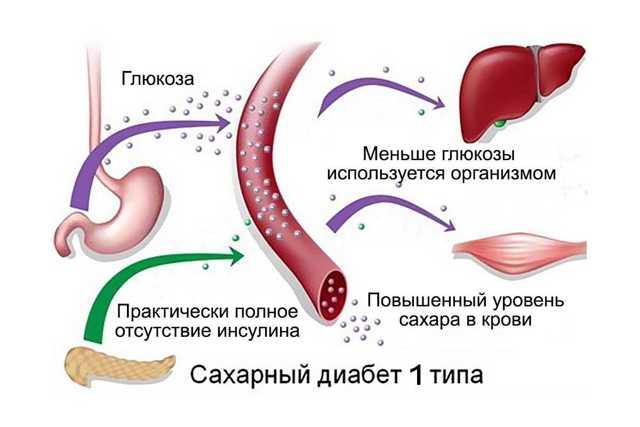 Эффективные сахароснижающие препараты: таблетки для снижения сахара в крови