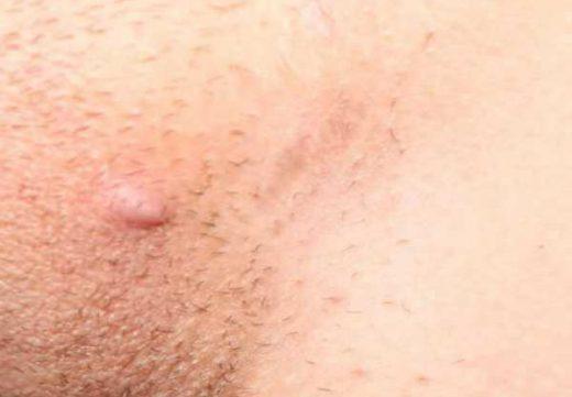 Фурункул, гнойник половых губ, в паху, во влагалище: симптомы, лечение, как убрать