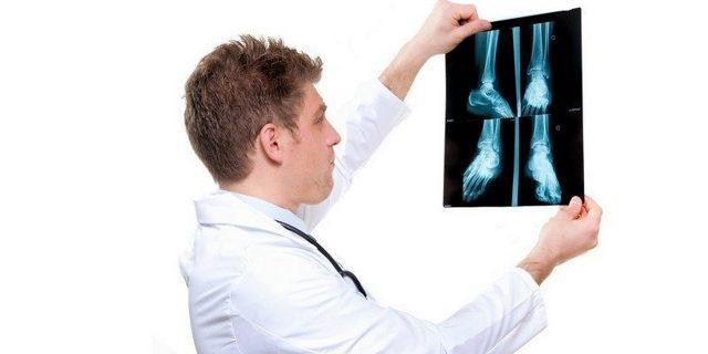 Бурсит – симптомы, причины развития, методы лечения бурсита – операция при бурсите, лечение бурсита народными средствами.