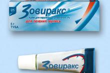 Вирус простого герпеса 1 типа: симптомы и лечение простуды на губах