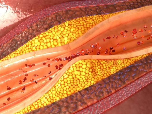 Методы очищения сосудов от холестерина, атеросклеротических бляшек и тромбов