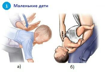 Инородное тело в дыхательных путях у ребенка и у взрослого: первая помощь при асфиксии