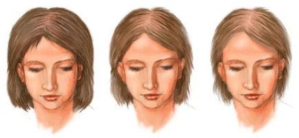 Обследования при гирсутизме у женщин и алопеции   ОкейДок