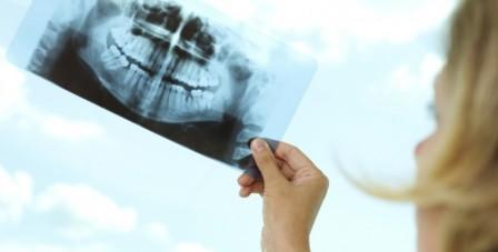Рентген при беременности на ранних и поздних сроках: вред, последствия для ребенка