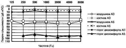 Аудиометрия слуха: что это такое, как проводится, расшифровка результатов
