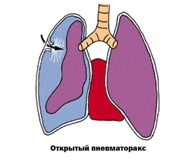 Закрытый пневмоторакс картинки