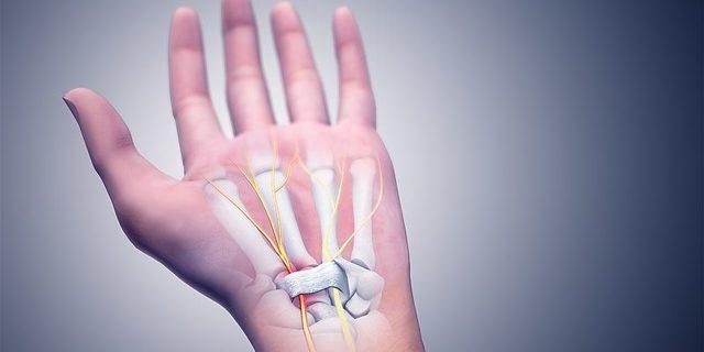 Синдром запястного канала (туннельный синдром) — симптомы заболевания, причины возникновения, диагностика, методы лечения и профилактики