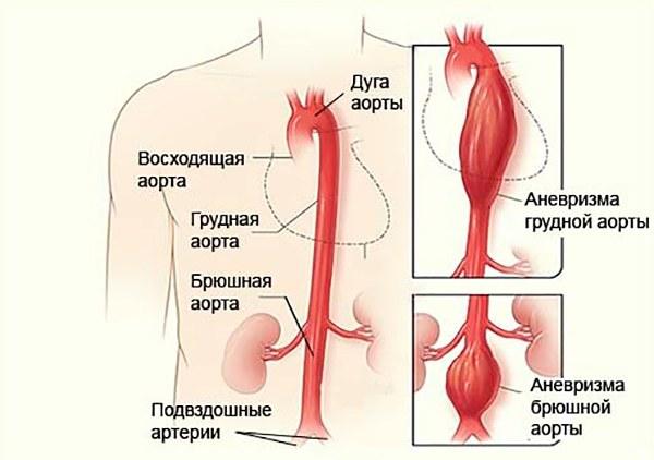 МРТ брюшной полости: какие органы проверяют, что показывает МРТ органов брюшной полости