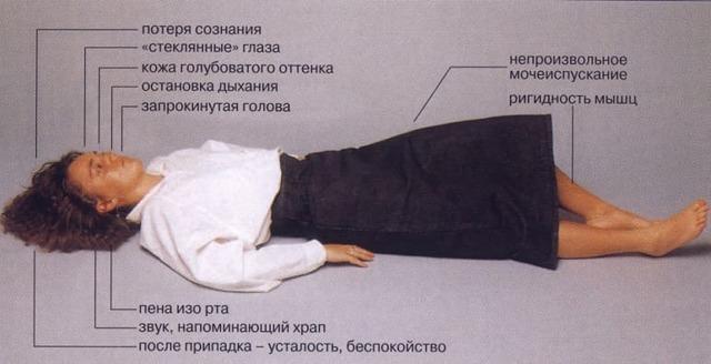 Эпилепсия: симптомы, лечение, причины эпилепсии, первая помощь при эпилепсии